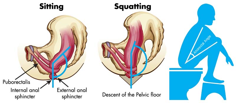 Toilet Squatting - Anorectal Angle
