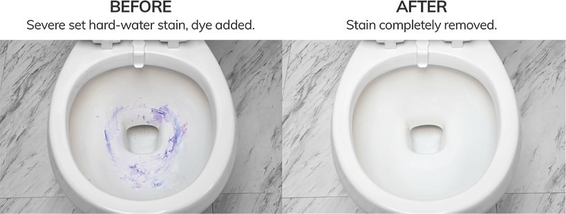Remove Bowl Stains